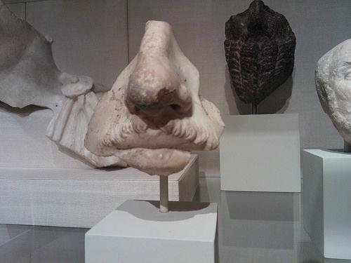 costuri rinoplastie timis